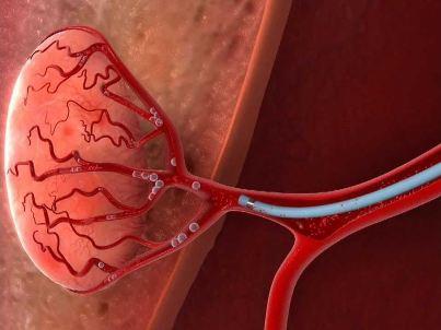 Mikrogranule pro léčbu karcinomů Embosphere  a Hepasphere